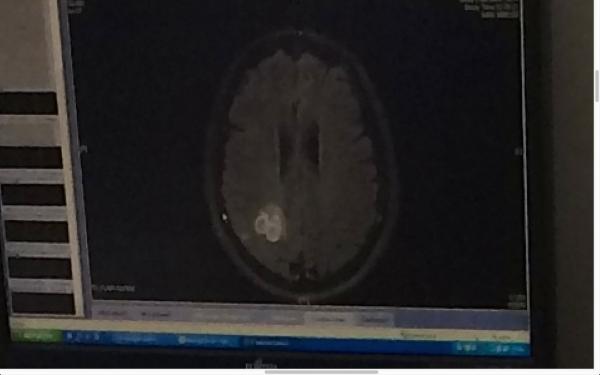 kevin-brain2